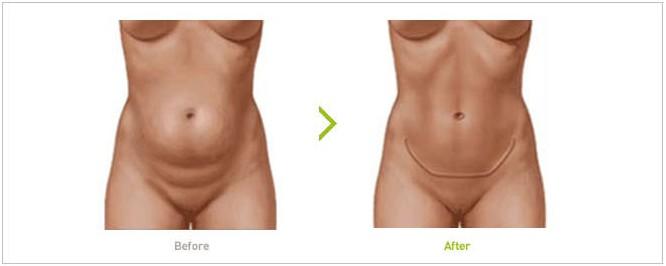 腹部皮肤结构图片