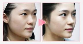 鼻子整形手术前后对比照片图片